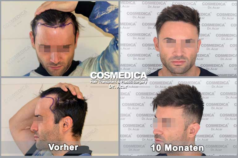 Haartransplantation-in-der-turkei-resultats-1
