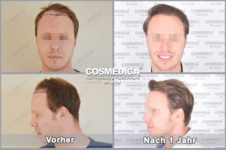 Haartransplantation-in-der-turkei-resultats-2