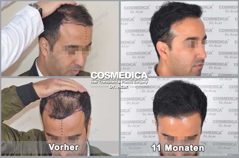 Haartransplantation-in-der-turkei-resultats-3