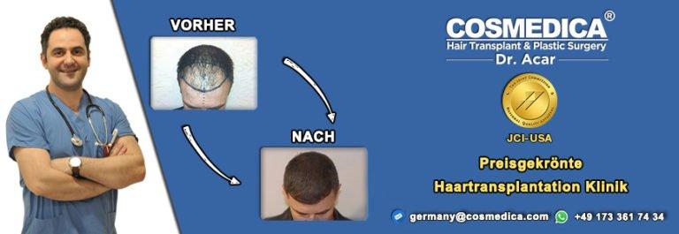 Natürliche Haarlinie bei der Haartransplantation