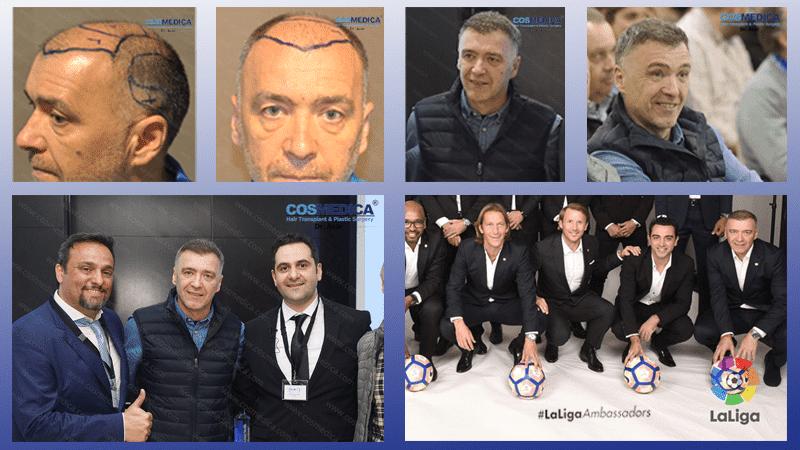 Haartransplantation-in-der-turkei-416