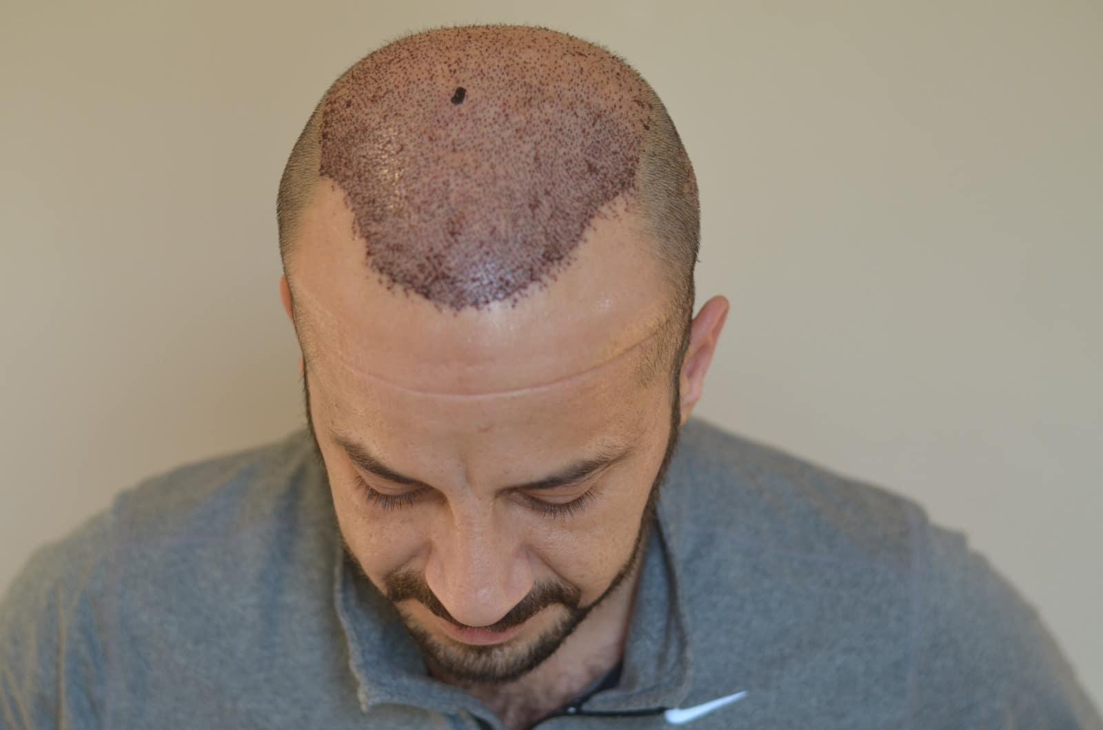 haar-transplantation-in-der-türkei-istanbul (12)