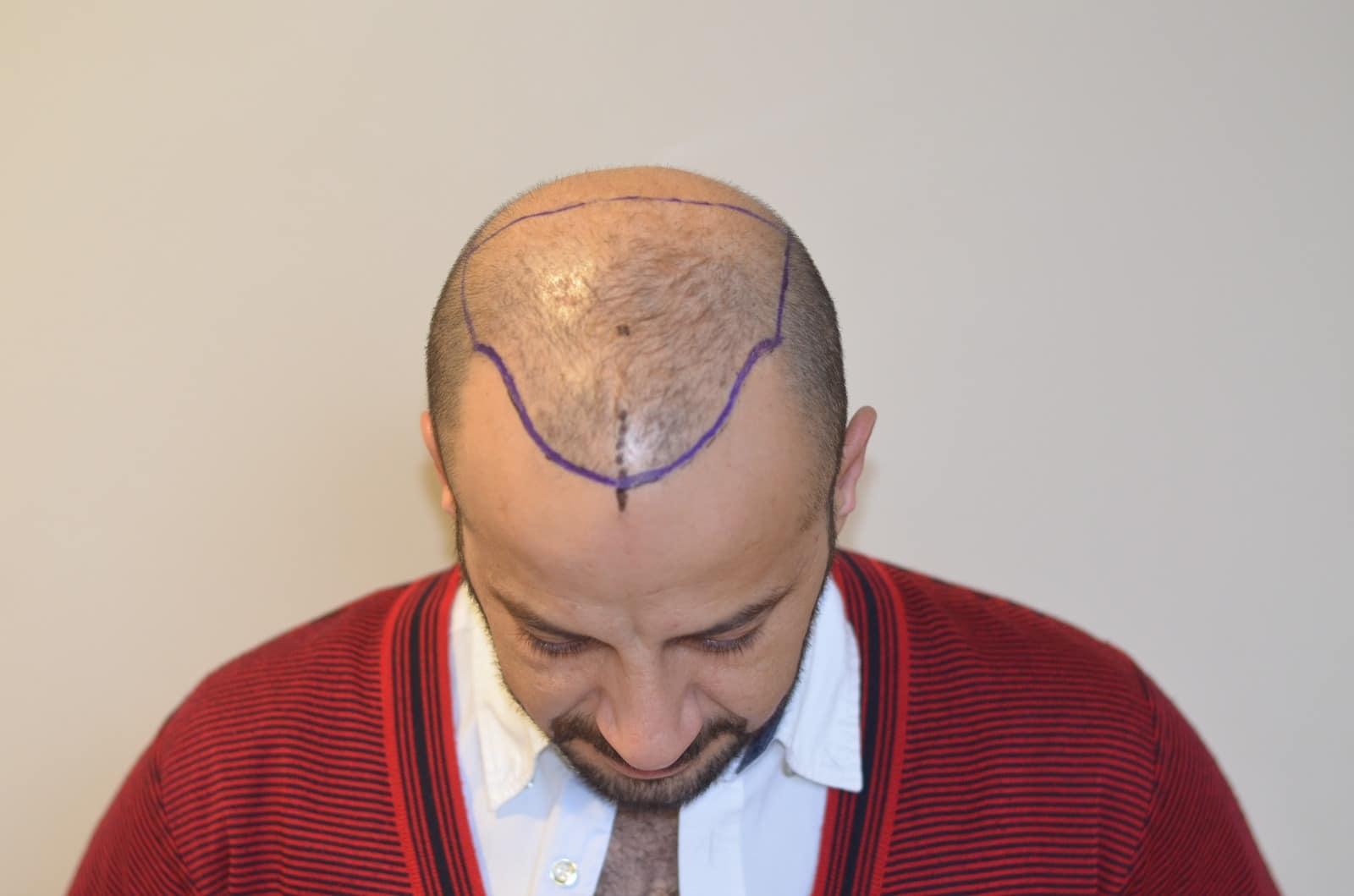 haar-transplantation-in-der-türkei-istanbul (14)