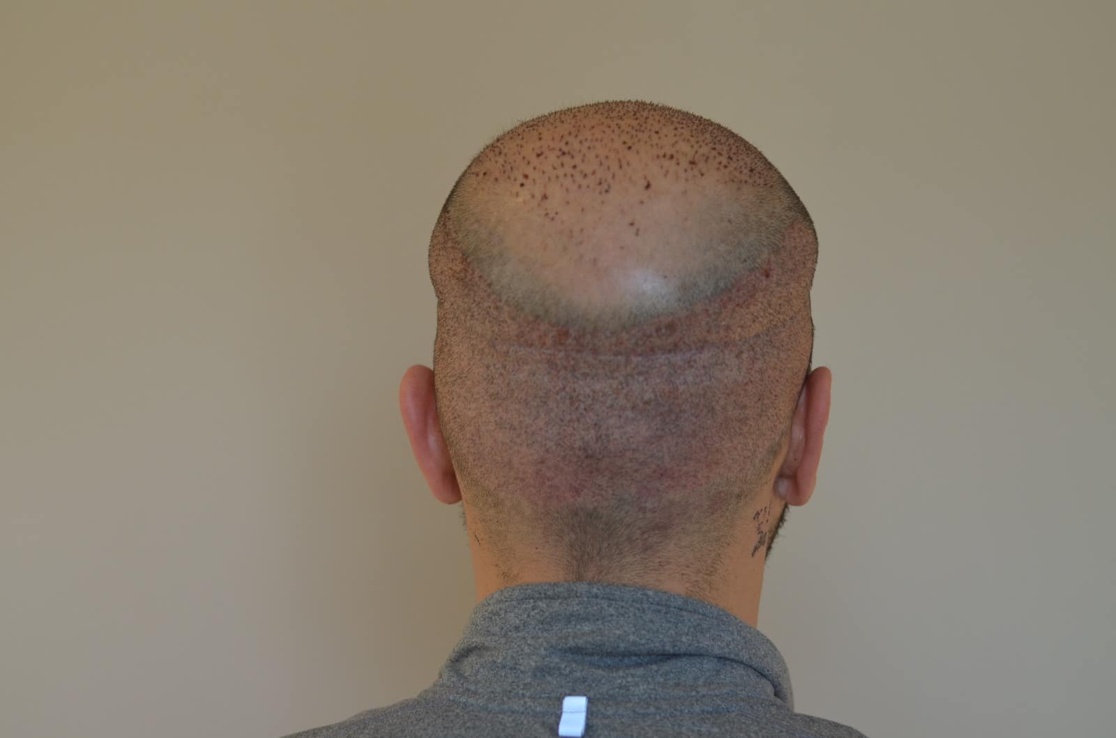 haar-transplantation-in-der-türkei-istanbul (6)