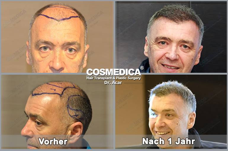 Haartransplantation-in-der-turkei-7