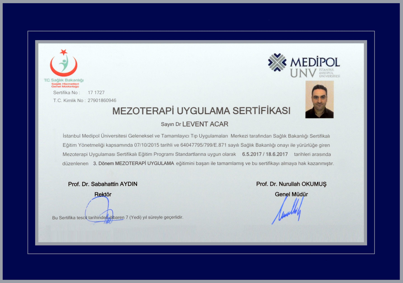 dr-levent-acar-haartransplantation-in-der-türkei (10)
