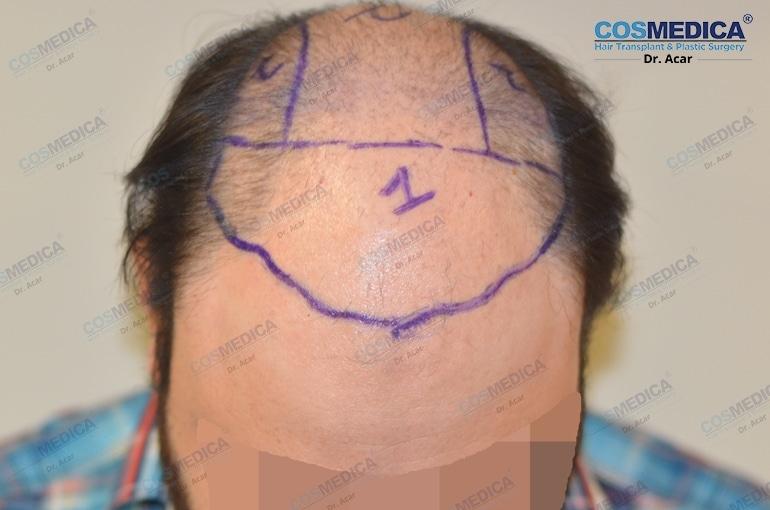 haar-transplantation-in-der-turkei-and-istanbul (1)