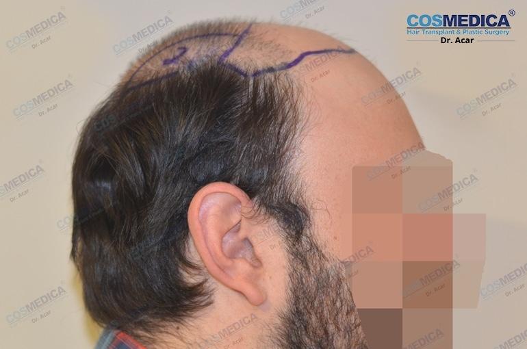 Der Haarausfall bei Männern wird mit der Hamilton Skala dargestellt