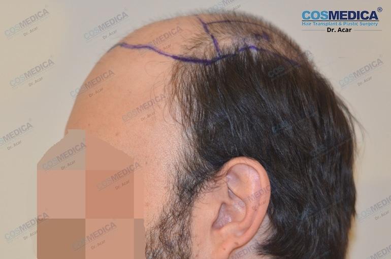 haar-transplantation-in-der-turkei-and-istanbul (3)