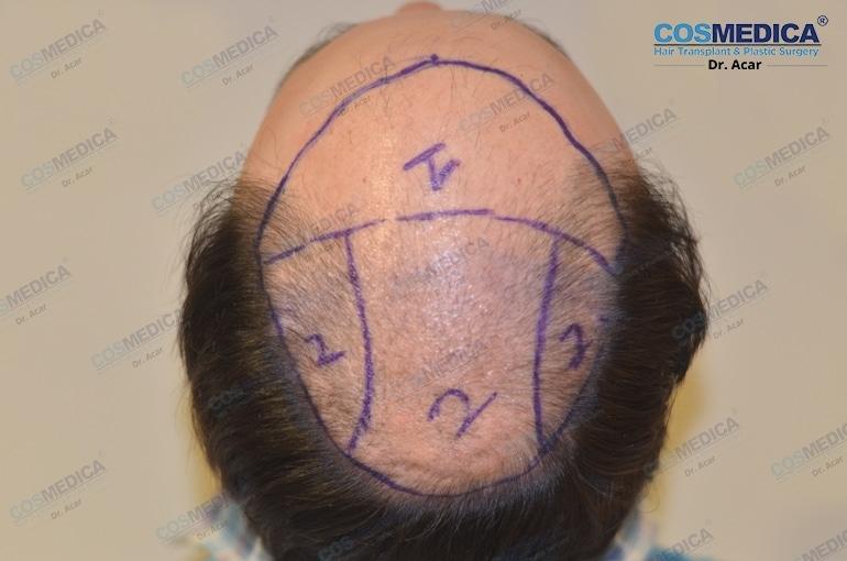 Beispiel eines kreisförmigen Haarausfalls bei Männern