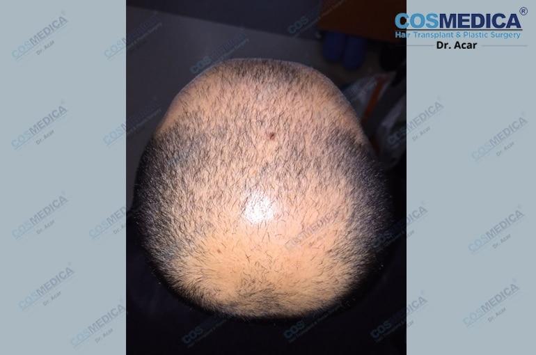 haar-transplantation-in-der-turkei-istanbul (3)