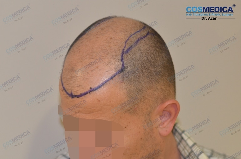 haartransplantation-in-der-istanbul-turkei-haarloss (2)
