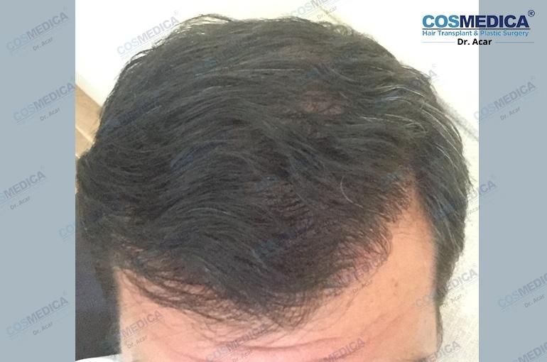 haartransplantation-in-der-istanbul-turkei-haarloss (4)