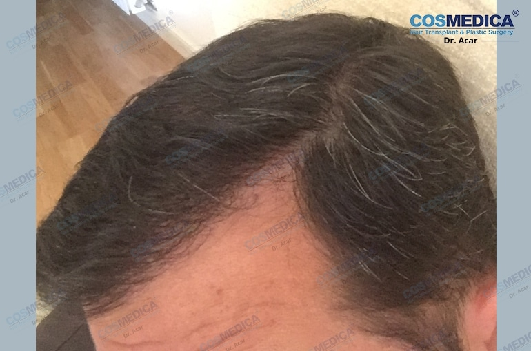 haartransplantation-in-der-istanbul-turkei-haarloss (5)