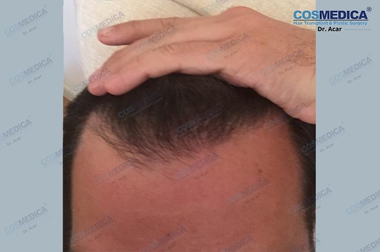 haartransplantation-in-der-istanbul-turkei-haarloss (7)