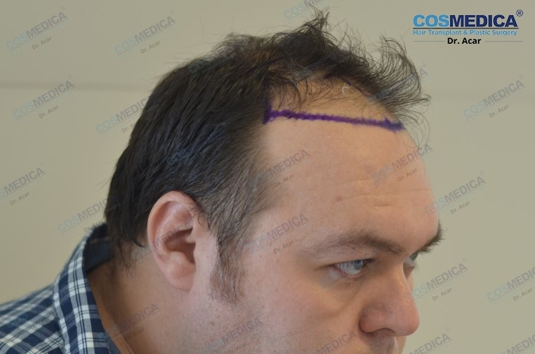 haartransplantation-in-der-türkei-haar-transplantation (2)