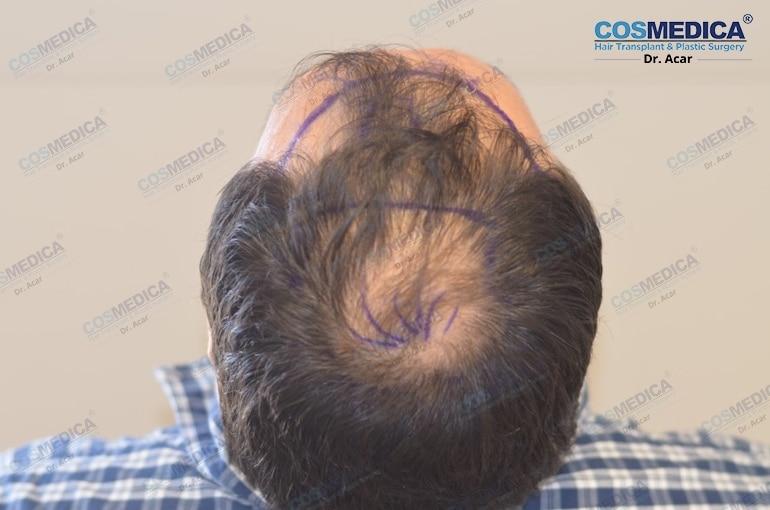 haartransplantation-in-der-türkei-haar-transplantation (4)