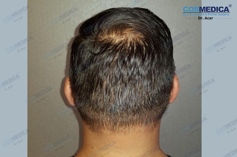 haartransplantation-in-der-türkei-haar-transplantation (5)