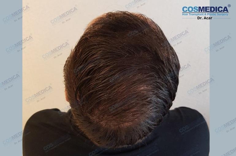 haartransplantation-in-der-türkei-haar-transplantation (9)