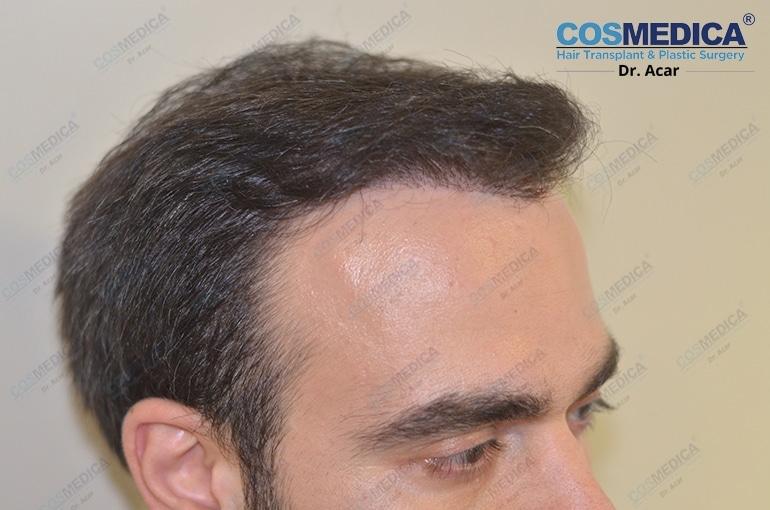 haartransplantation-in-der-turkei-istanbul-dr-acar (1)