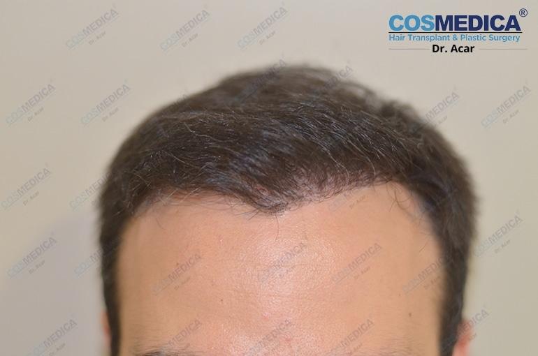 haartransplantation-in-der-turkei-istanbul-dr-acar (2)