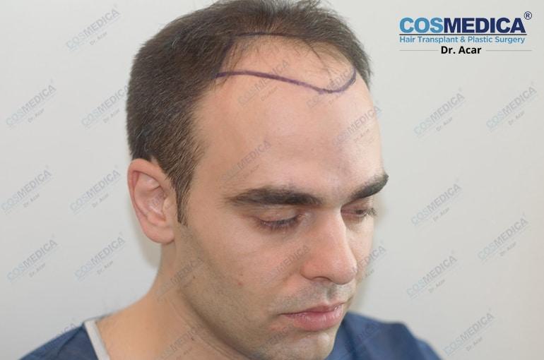 haartransplantation-in-der-turkei-istanbul-dr-acar (3)