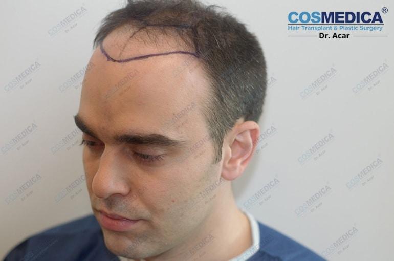 haartransplantation-in-der-turkei-istanbul-dr-acar (4)