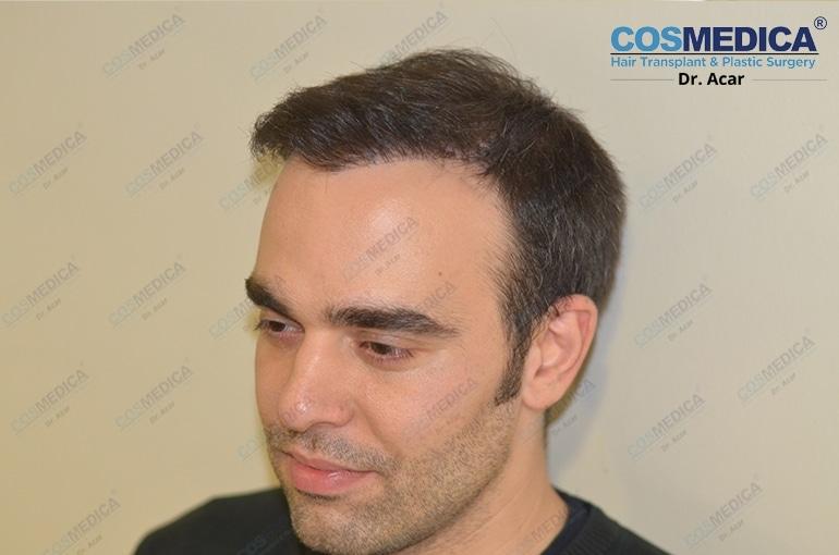 haartransplantation-in-der-turkei-istanbul-dr-acar (6)