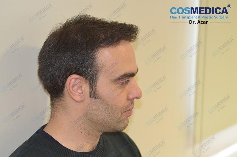 haartransplantation-in-der-turkei-istanbul-dr-acar (7)
