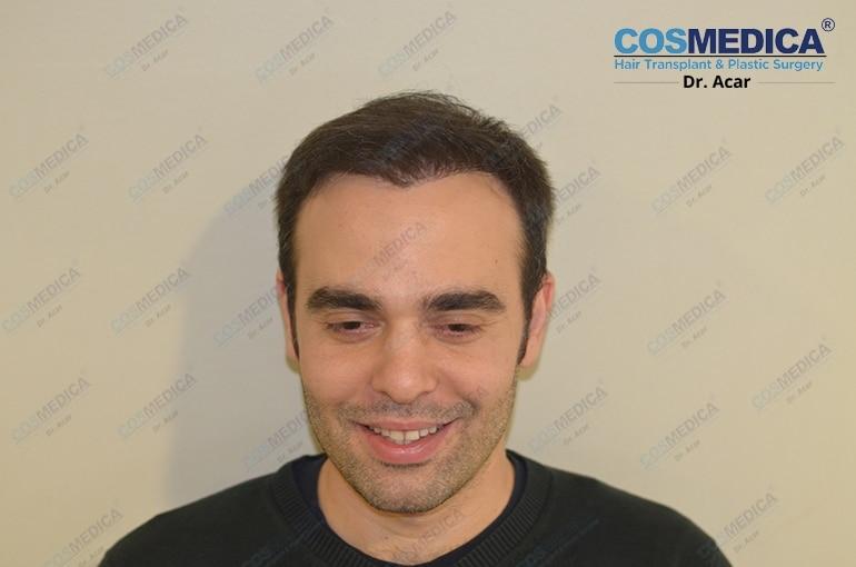haartransplantation-in-der-turkei-istanbul-dr-acar (8)