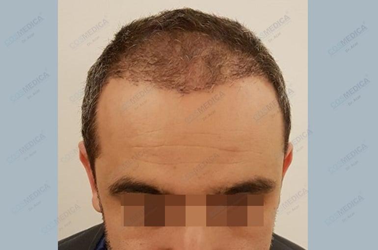 haartransplantation-in-der-turkei-istanbul-haar (1)