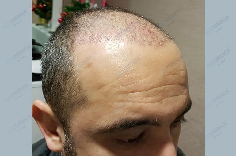 haartransplantation-in-der-turkei-istanbul-haar (2)
