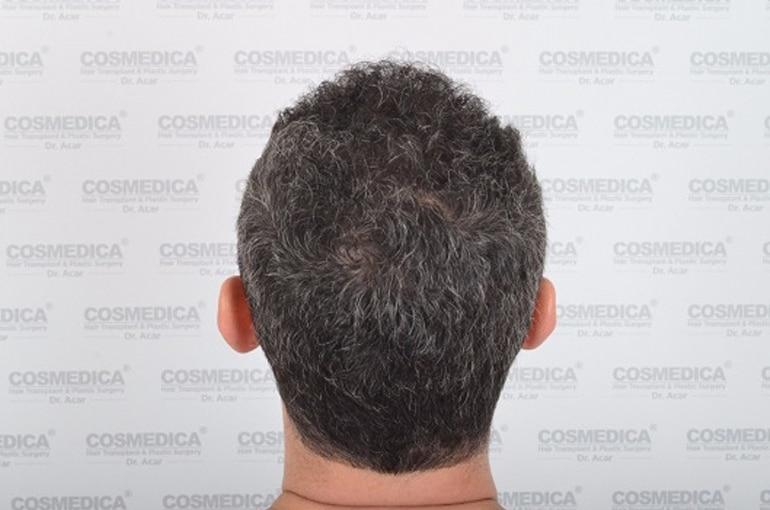 haartransplantation-in-der-turkei-istanbul-haar (5)