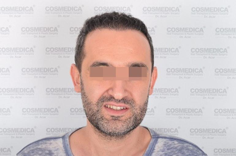 haartransplantation-in-der-turkei-istanbul-haar (7)