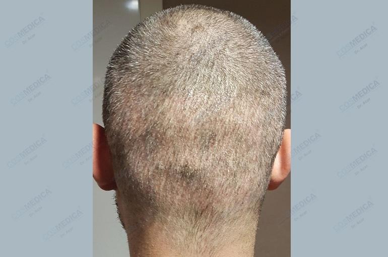 haartransplantation-in-der-turkei-istanbul-haar (8)