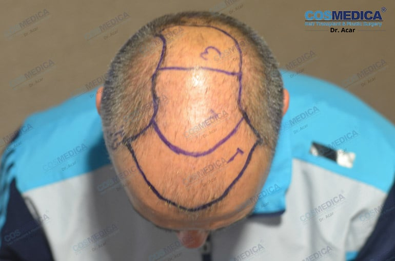 haartransplantation-in-der-turkei-milinko-pantic (2)