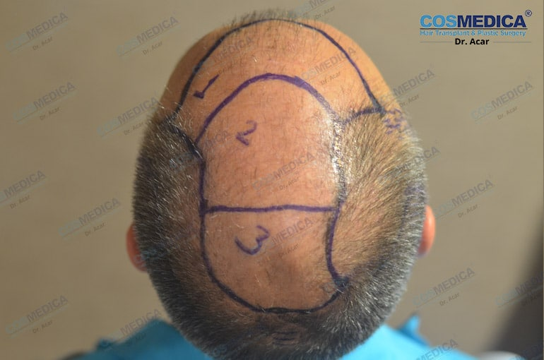 haartransplantation-in-der-turkei-milinko-pantic (5)