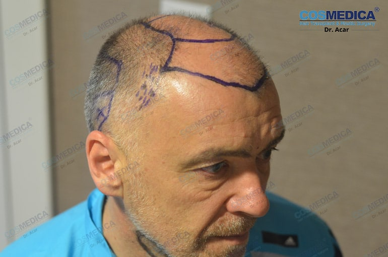haartransplantation-in-der-turkei-milinko-pantic (6)