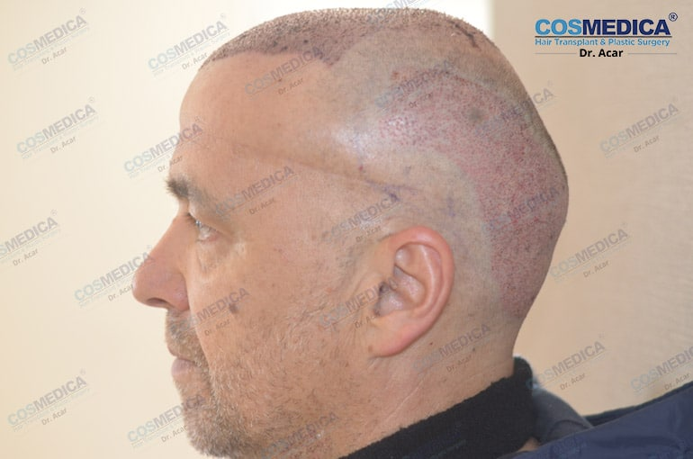 haartransplantation-in-der-turkei-milinko-pantic (8)