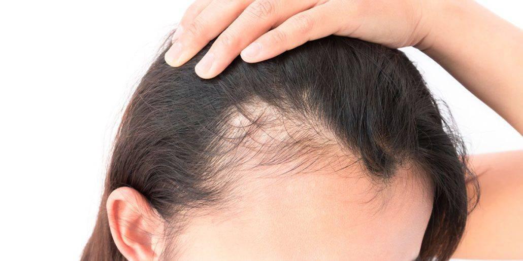 Alles, was sie über Haartransplantation für Frauen wissen müssen