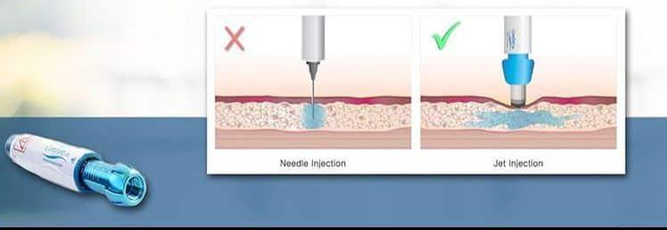 Nadellose Betäubung - Haartransplantation Cosmedica