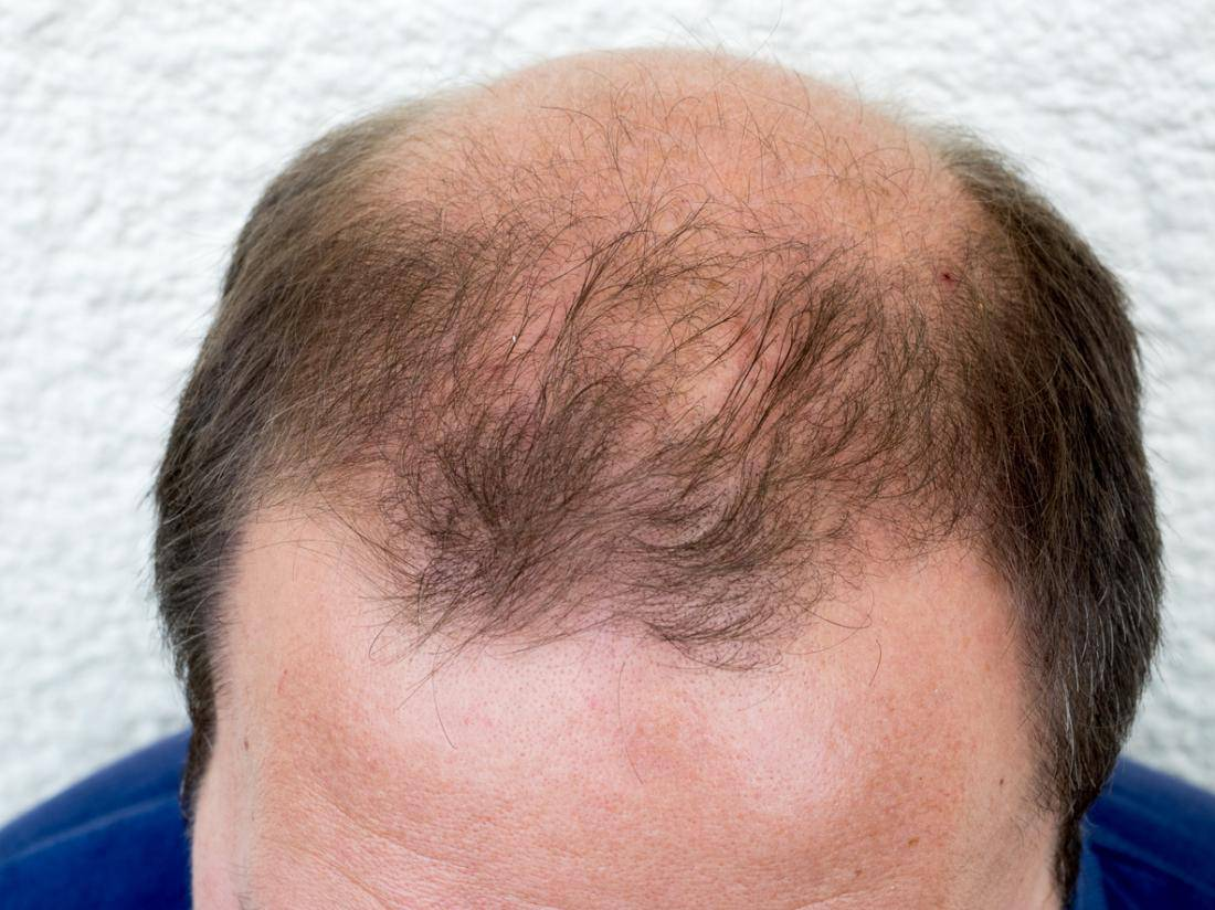 5 Fakten zum Androgenen Haarausfall