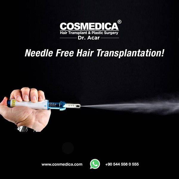 Nadellose Betäubung für eine Haartransplantation ohne Schmerzen
