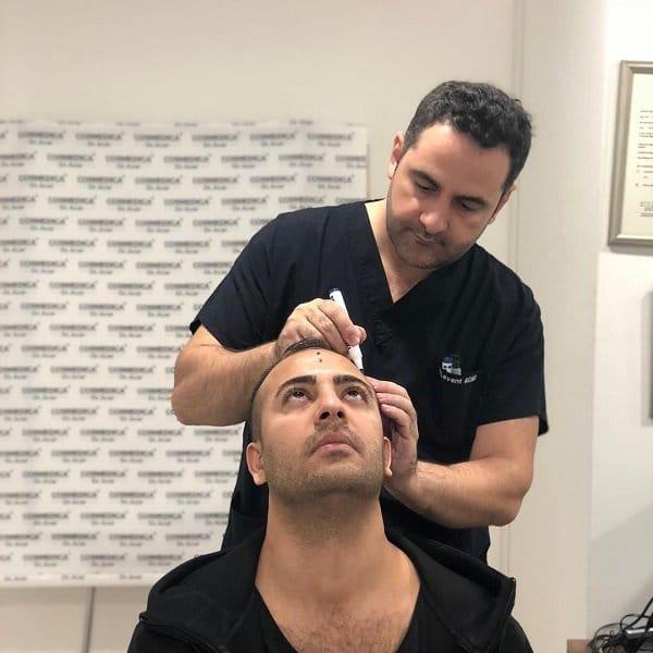 Haaranalyse für die Haartransplantation bei Cosmedica