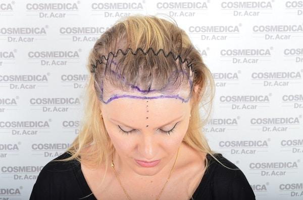 Haben Frauen einen erblich bedingten Haarausfall kann eine Haartransplantation helfen