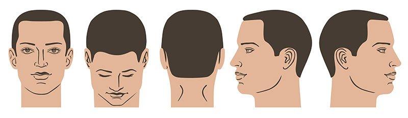 Beispielbilder für eine Haaranalyse