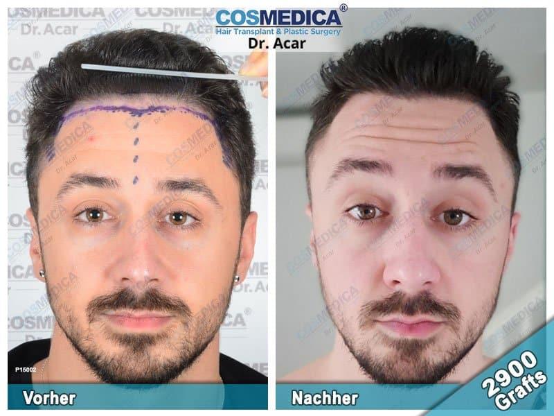 Ergebnis nach einer Haartransplantation mit 2900 Grafts