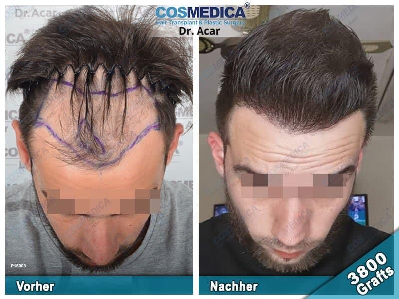 Ergebnis nach einer Haartransplantation mit 3800 Grafts