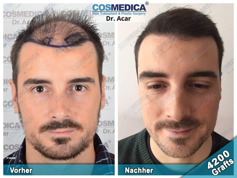 Ergebnis nach einer Haartransplantation mit 4200 Grafts