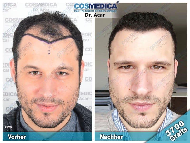 Ergebnis nach einer Haartransplantation mit 3700 Grafts
